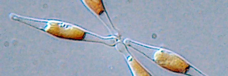 Los microplásticos alteran las funciones de una microalga básica para los ecosistemas marinos